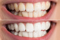 Person Teeth Before And After Whitening Royalty Free Stock Photo