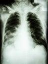 Pneumonia with respiratory failure Royalty Free Stock Photo