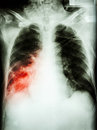 Pneumonia with respiratory failure film chest x ray of patient endotracheal tube catheter he was treated in icu Royalty Free Stock Photo