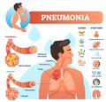 Pneumonia vector illustration. Labeled diagram with causes and symptoms.