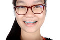 Portrait of asian young girl with glasses and braces isolated on white background Royalty Free Stock Photography