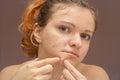 De joven mujer acné o grano