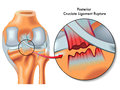 Posterior cruciate ligament rupture medical illustration of ruptur Stock Photo