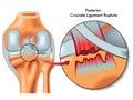 Posterior cruciate ligament rupture