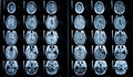 Pre/Post Contrast Brain MRI Stock Photography