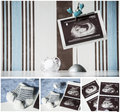 Pregnancy concept collage Royalty Free Stock Photo