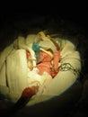 Premature Baby In NICU Holding...