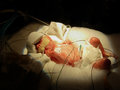 Premature baby on Ventilator and IVs Royalty Free Stock Photo