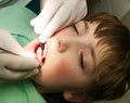 Prevention tooth control young boy on treatment Stock Photography