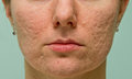 Problematic skin frontal view of girl s cheeks and chin with acne scars Royalty Free Stock Images