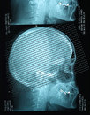 Profile view with a human skull X Ray Royalty Free Stock Photo