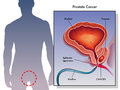 Prostate cancer medical illustration of the effects of Royalty Free Stock Images
