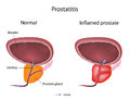 Prostatitis Stock Images