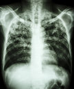 Pulmonary tuberculosis film chest x ray show interstitial infiltration both lung due to mycobacterium infection Royalty Free Stock Photo