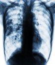 Pulmonary tuberculosis . Film x-ray of chest show patchy infiltrate at right lung due to TB infection