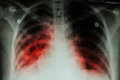 Pulmonary Tuberculosis ( TB ) : Chest x-ray show alveolar infiltration at both lung due to mycobacterium tuberculosis infectionP