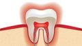 Pulsation of sensitive tooth enamel Royalty Free Stock Photo
