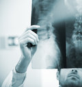 Radiologist exam professional examining an x ray image of human spine Stock Photos