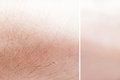 Real and graphic processed skin in close up mode Royalty Free Stock Photography