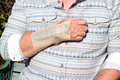 Repetitive strain injury wrist splint a man suffering from injured he has or rsi and is wearing a to support the Stock Photography