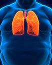 Respiratory system of overweight body d render Stock Images