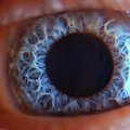 Retina in human eye Royalty Free Stock Photo