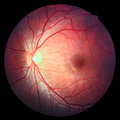 Retina scanning with back background view inside the human eye showing a healthy and optic nerve Stock Images