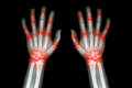 Rheumatoid arthritis , Gout arthritis  ( Film x-ray both hands of child with multiple joint arthritis ) ( Medical , Science and He Royalty Free Stock Photo