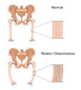 Rickets and Osteomalacia Royalty Free Stock Images