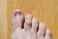 Right foot toes toenails with big toenail growing new after accident Royalty Free Stock Photos