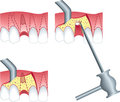 Root canal surgery Stock Photography