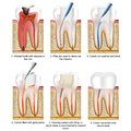 Root canal treatment medical vector illustration isolated on white background with description