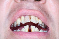 Rotten and crooked teeth of men can be sign running periodontal Stock Photo