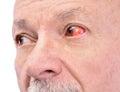 Senior man with irritated red bloodshot eye Royalty Free Stock Photo