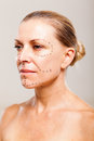 Senior woman patient plastic surgery close up Stock Photo