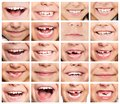 Set of smiles faces smiling children kids healthy teeth smile Stock Images