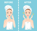 Before-After set of upset and happy woman with female facial skin problems needs to care about: acne, pimples.