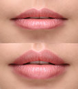 Sexy plump lips after filler injection Royalty Free Stock Photo