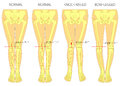Shapes of the  legs.Normal and curved legs.Knock knees.Bowed leg Royalty Free Stock Photo