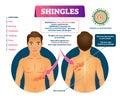Shingles vector illustration. Labeled medical skin virus explanation scheme Royalty Free Stock Photo