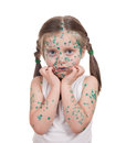 Sick child. chickenpox Royalty Free Stock Photo