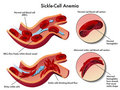 Sickle cell anemia Royalty Free Stock Images