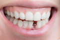 Single tooth implant Royalty Free Stock Photo