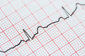 Sinus heart rhythm on electrocardiogram record paper showing normal heart p wave pr and qt interval and qrs complex Royalty Free Stock Image