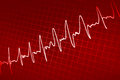 Sinus line heart monitor cardiogram Stock Photos