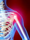 Skeletal shoulder with pain Stock Image