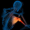 Skeleton of the man with the backbone pain shoulder Stock Image