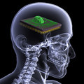 Skeleton X-Ray - CPU Brain Royalty Free Stock Image