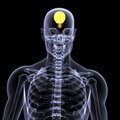 Skeleton X-Ray - Idea 1 Royalty Free Stock Photos