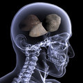 Skeleton X-Ray - Rocks In His Head Stock Photography